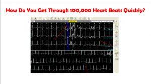 Get Through 100000 Heartbeats
