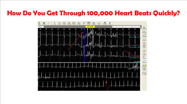 How Do You Get Through 100,000 Heart Beats Quickly?